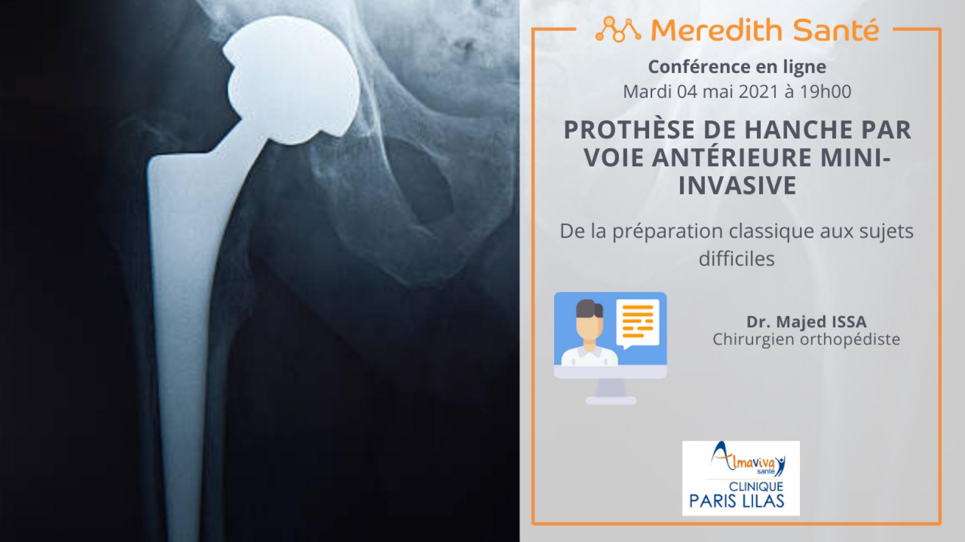 Webinaire : PROTHESE DE HANCHE PAR VOIE ANTERIEURE MINI-INVASIVE : DE LA PREPARATION CLASSIQUE AUX SUJETS DIFFICILES